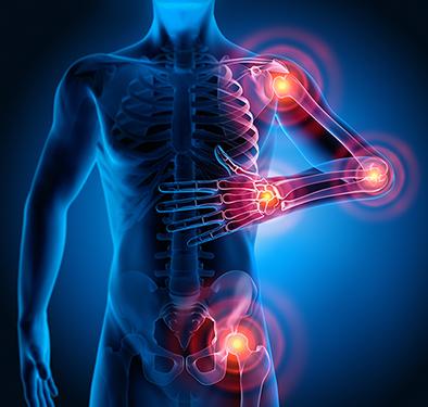 Reiki e Fibromialgia